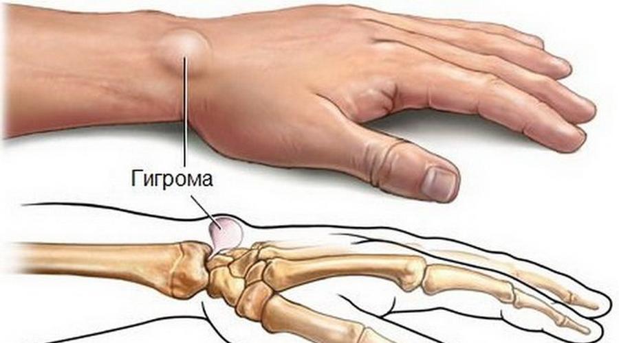 Лечение гигромы в Уфе фото