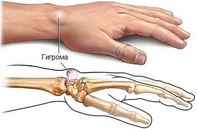 Лечение гигромы в Уфе