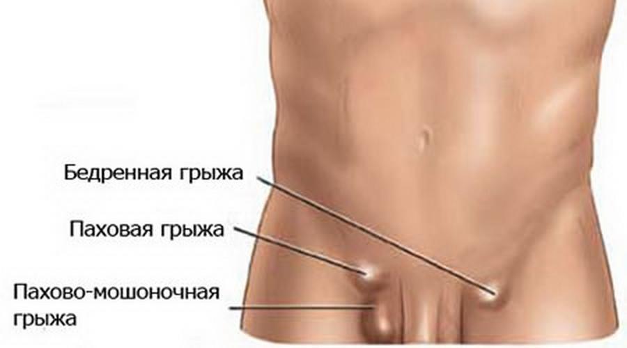 Лечение паховой грыжи в Уфе