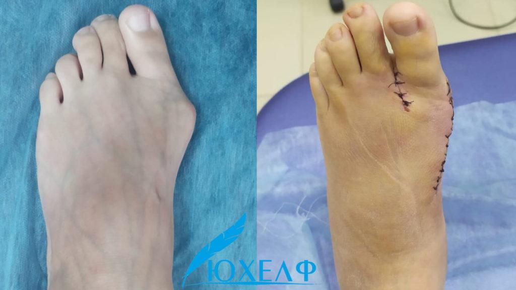 Фото до и после удаления косточки на стопе фото